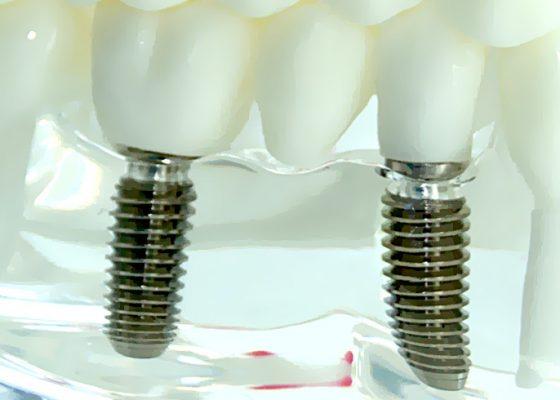 Implantología_grande